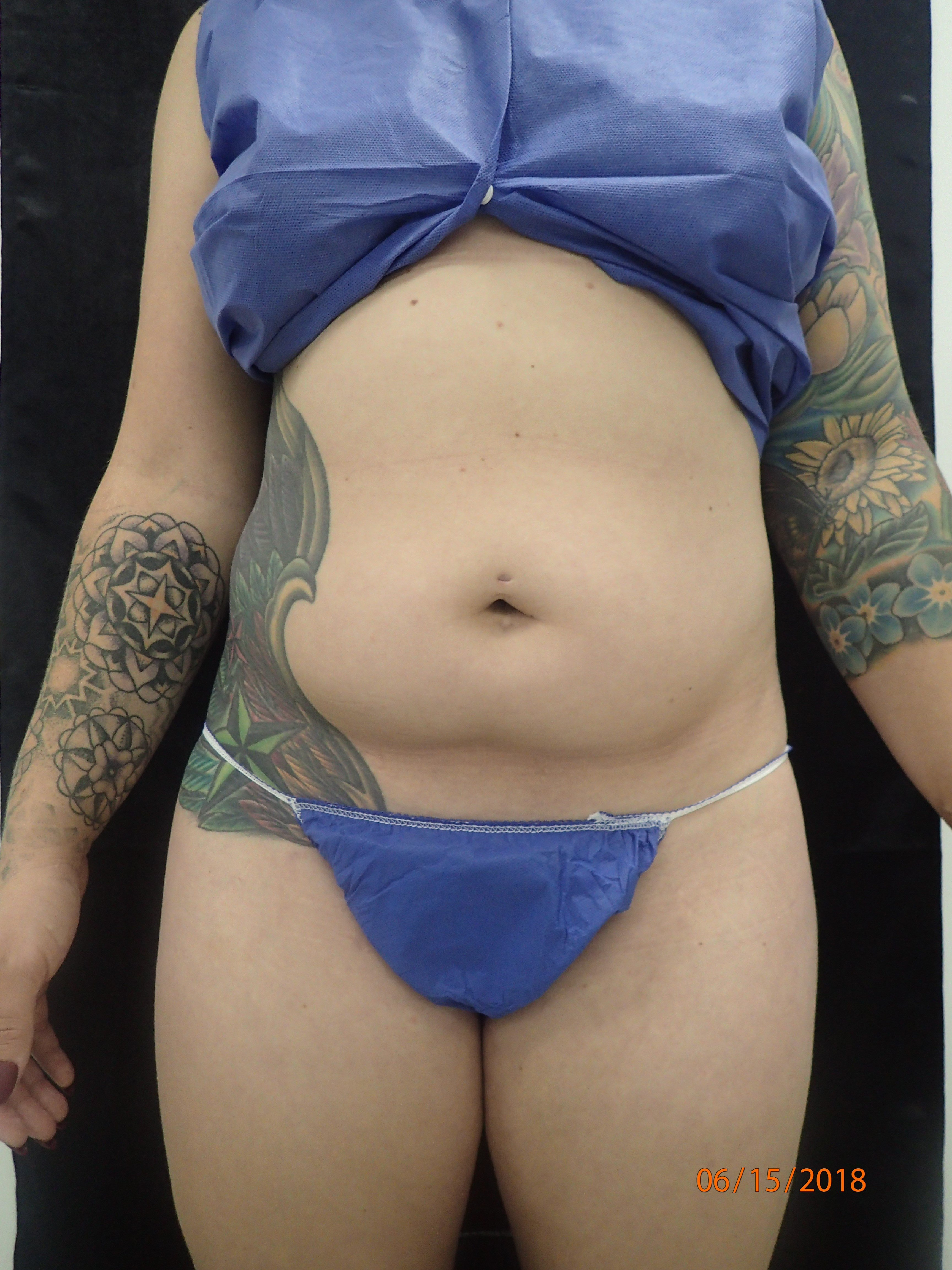 New Smartlipo Photos Before