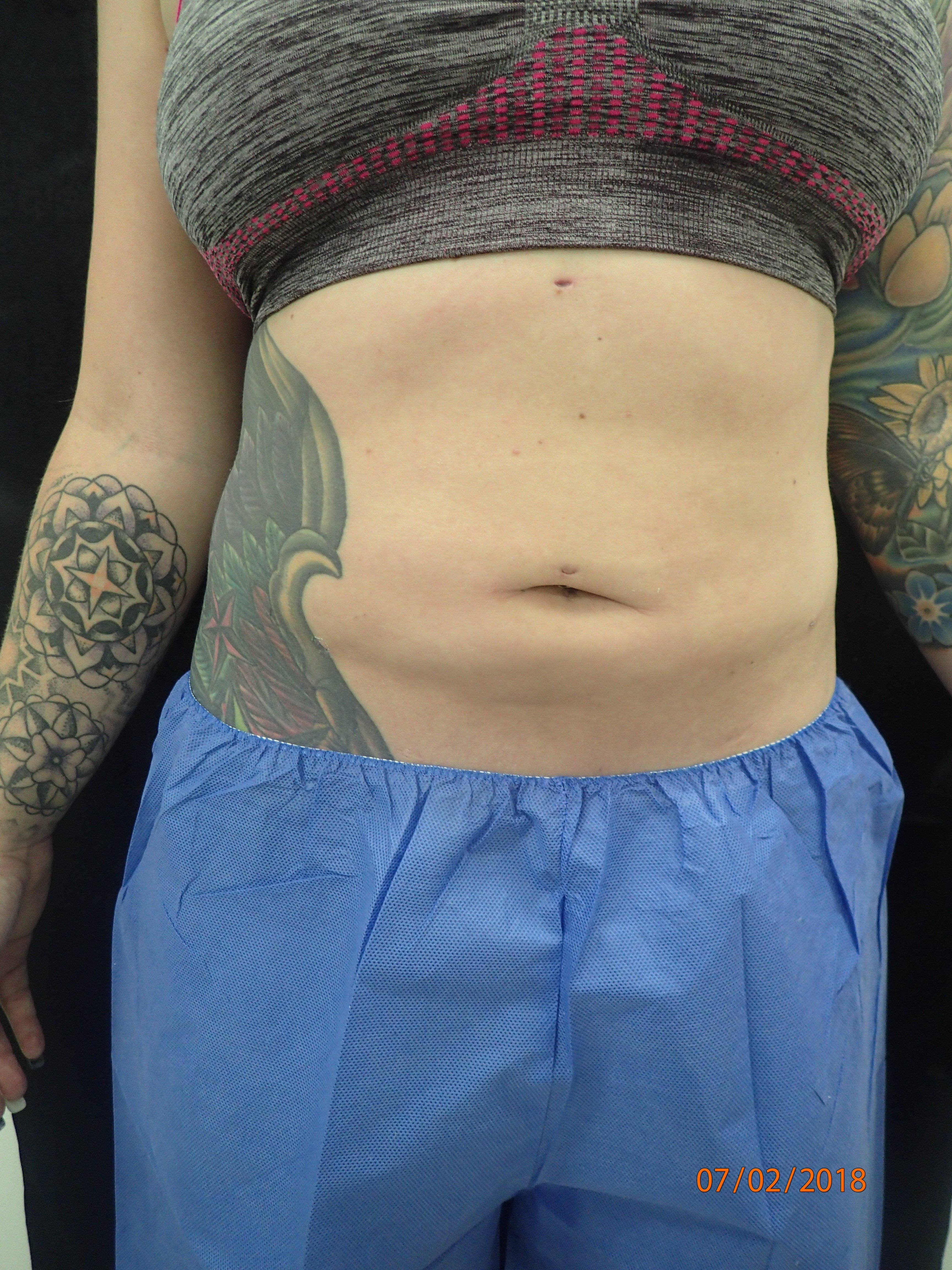 New Smartlipo Photos After