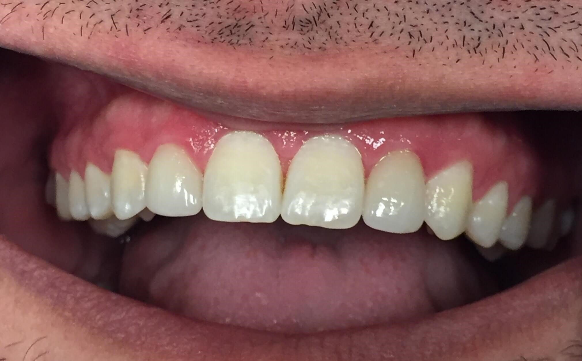 Veneers for Lateral Incisors After