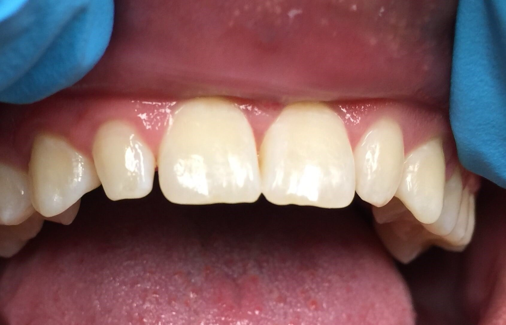 Veneers for Lateral Incisors Before