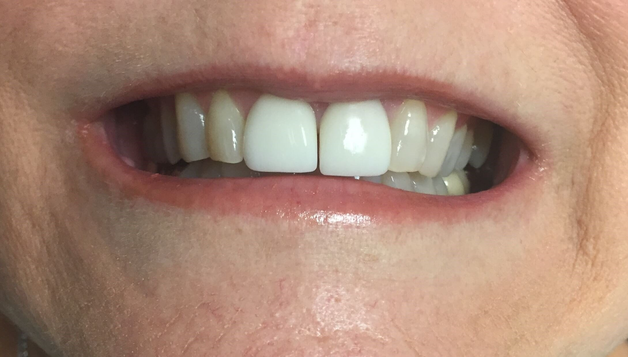 Veneers Lateral Incisor/Canine Before