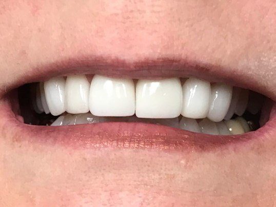Veneers Lateral Incisor/Canine After