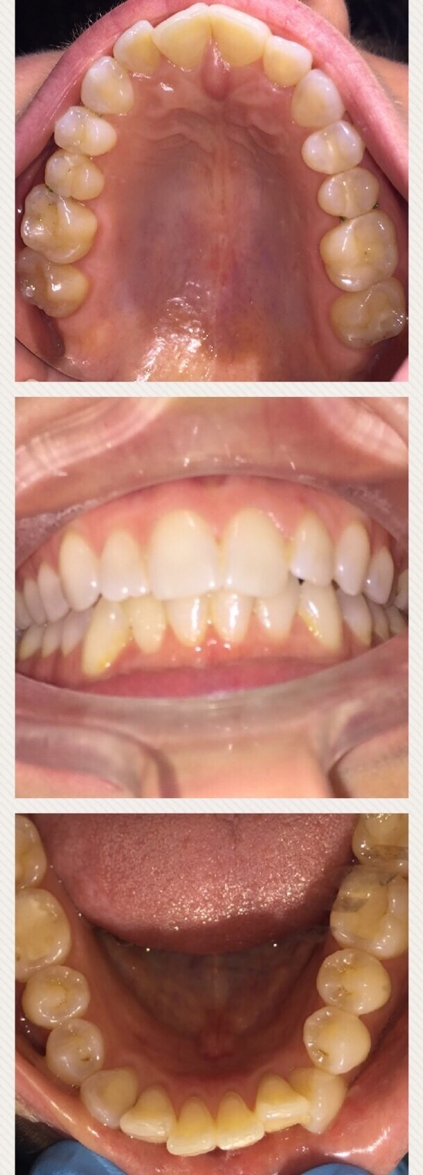 Invisalign Clear Aligners Before
