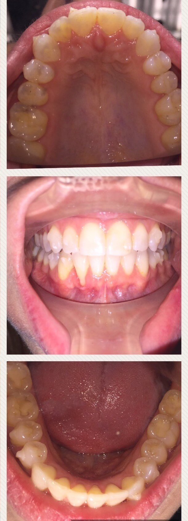 Invisalign Clear Aligners After