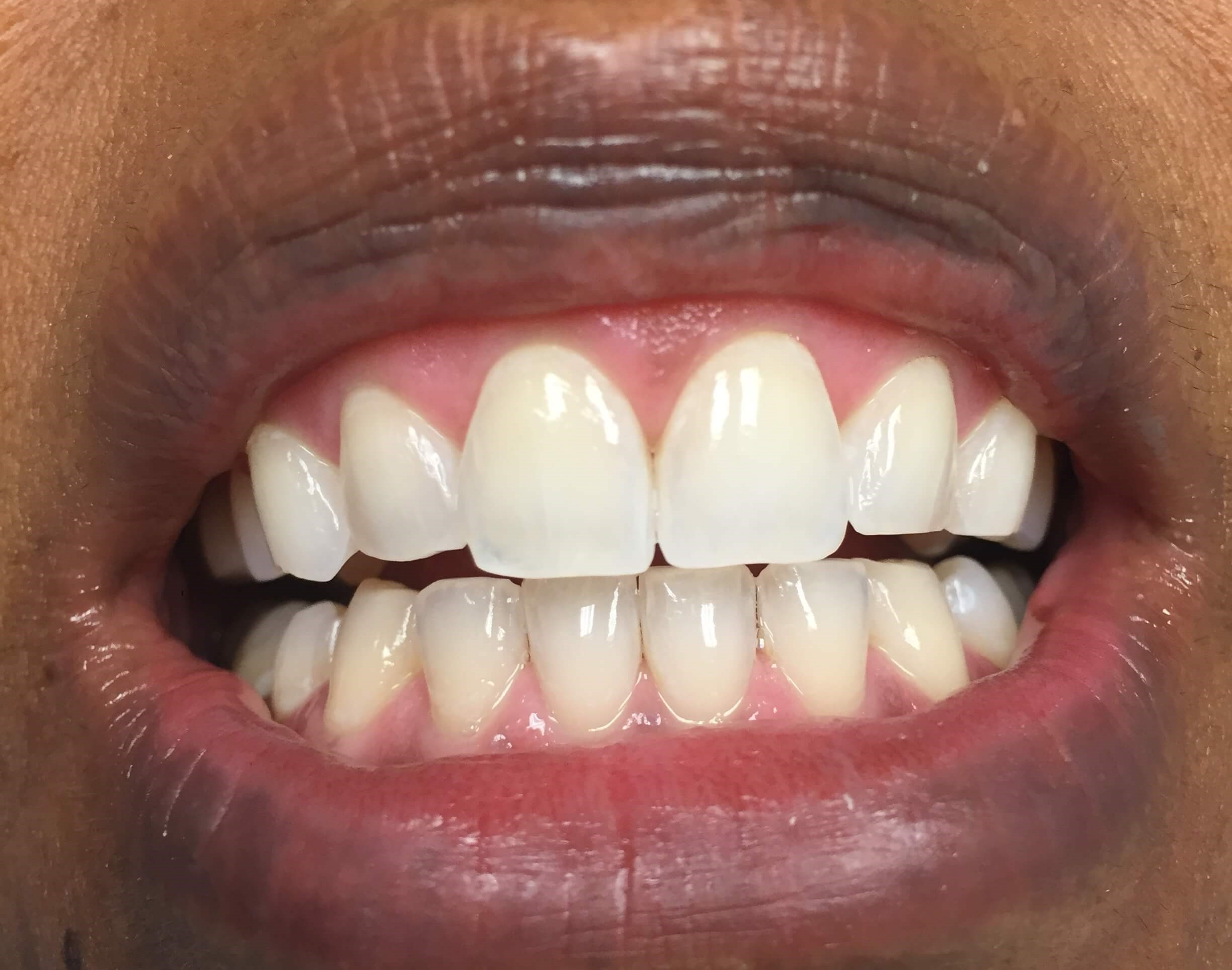 Zoom! Whitening After