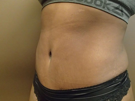 Timeless Tuck Oblique View After