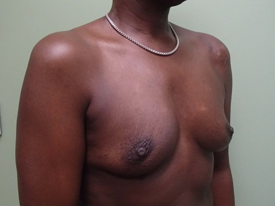 Breast Aug Oblique View Before
