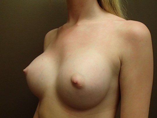 Breast Aug Oblique View After