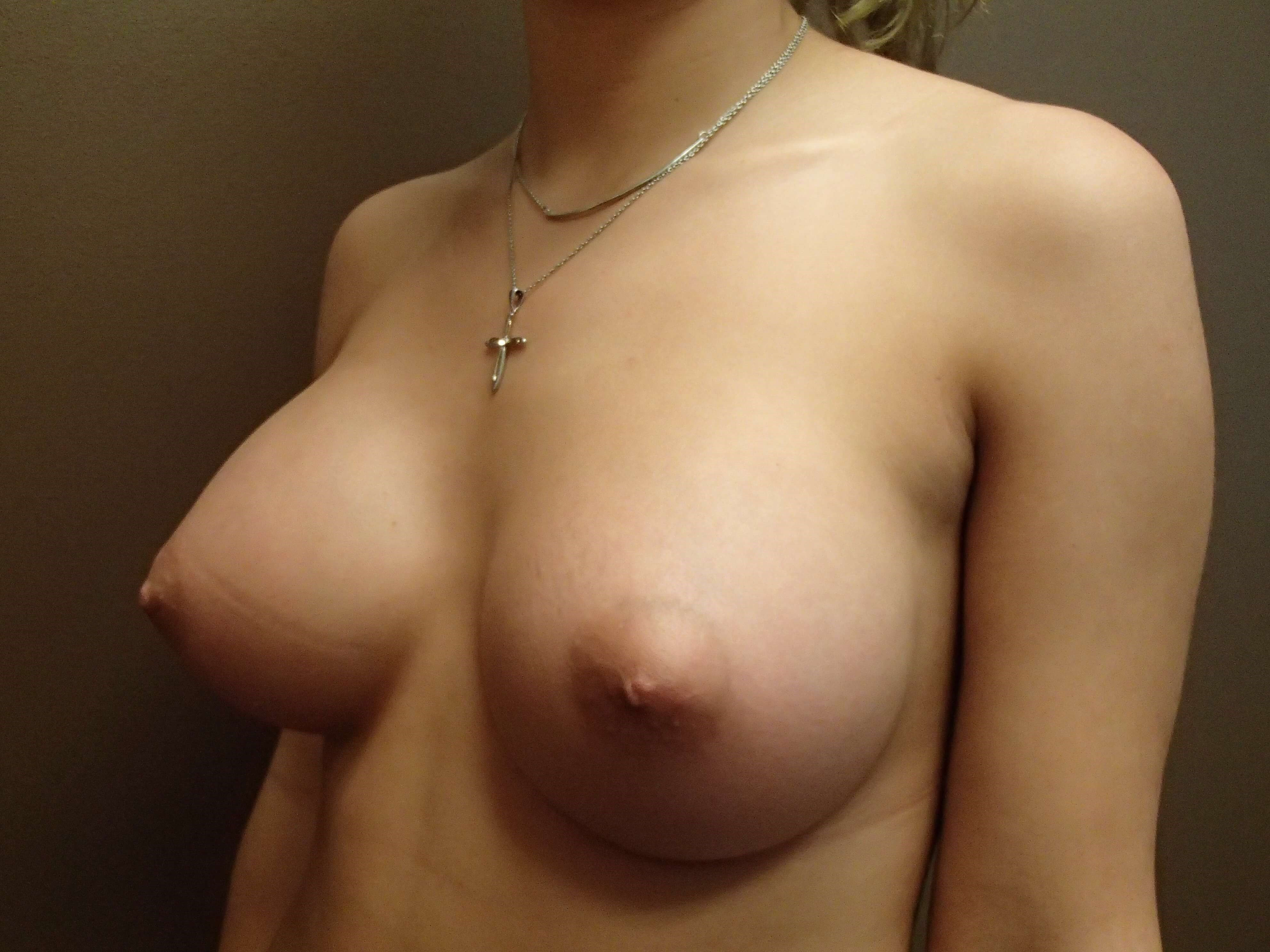 Breast Augmentation Oblique After