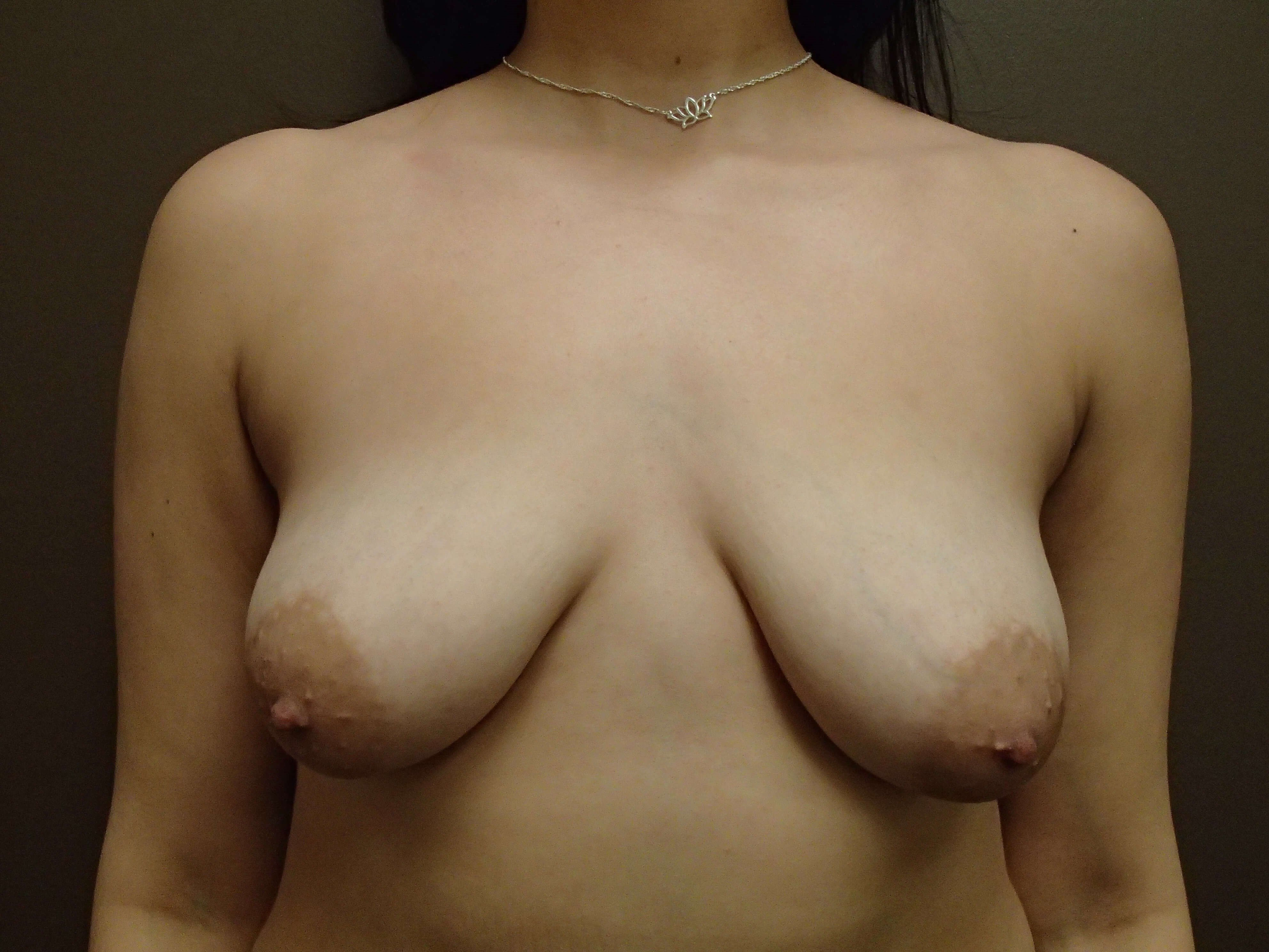 Mastopexy (Breast Lift) Front Before