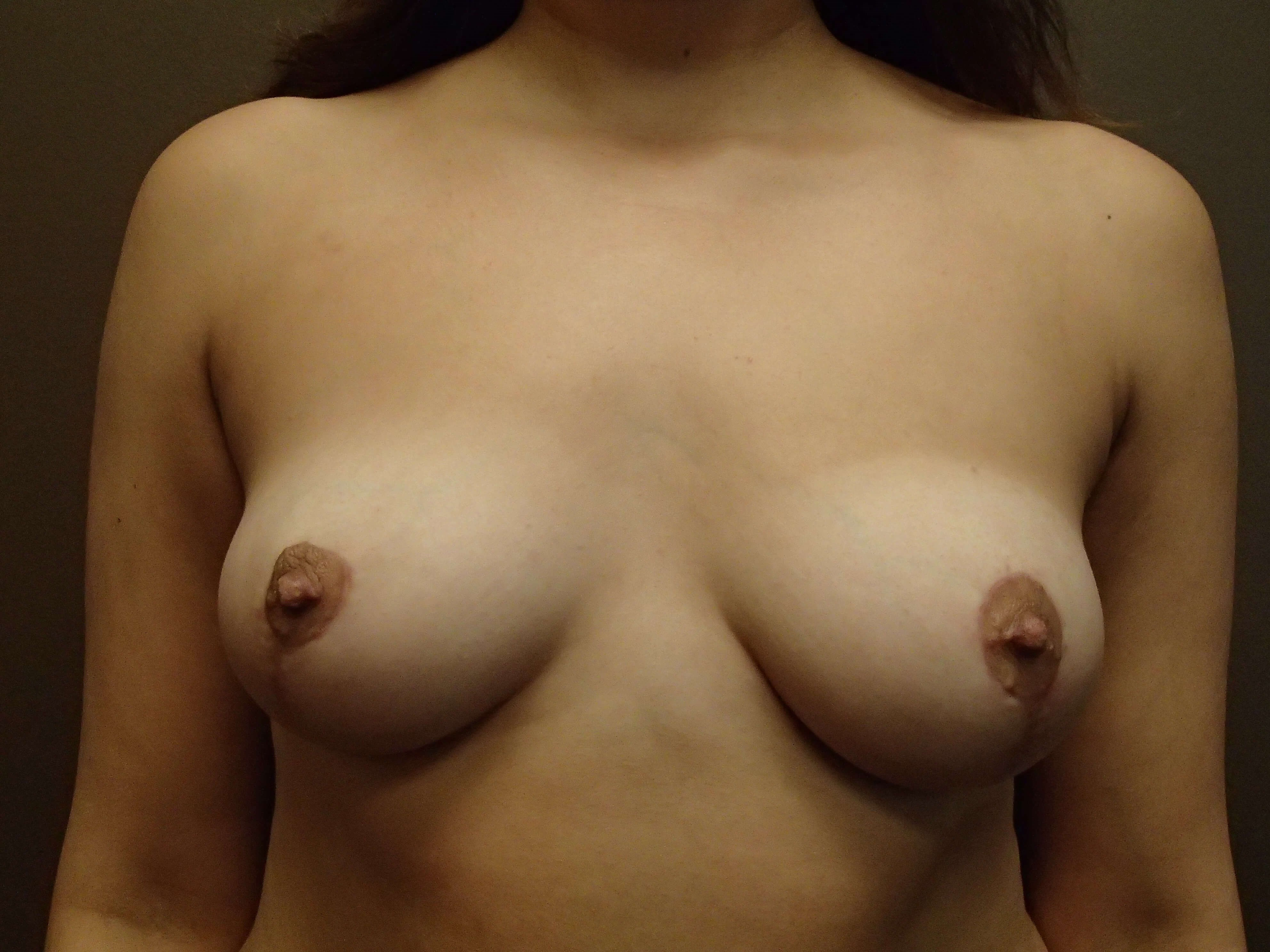 Mastopexy (Breast Lift) Front After