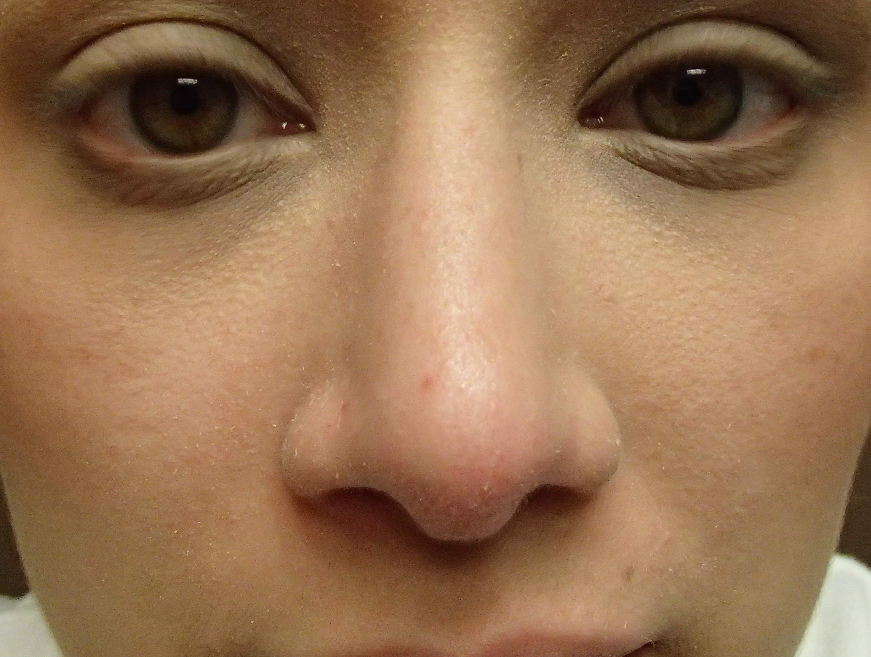 Rhinoplasty (nose job) Front After