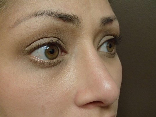 Rhinoplasty (nose job) Oblique After