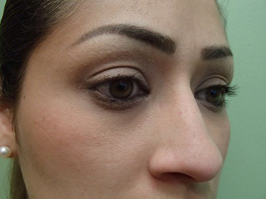 Rhinoplasty (nose job) Oblique Before