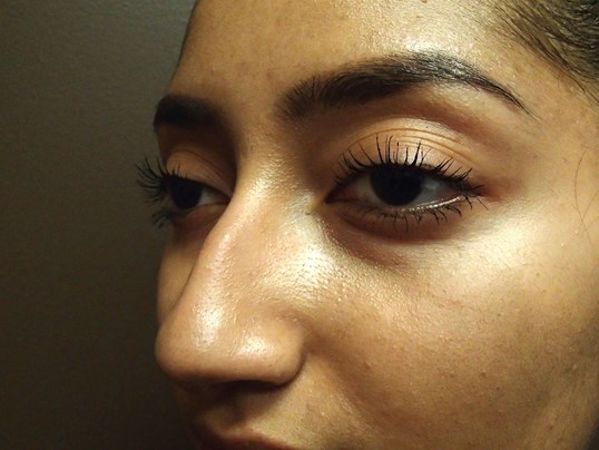 Rhinoplasty (nose job) Before