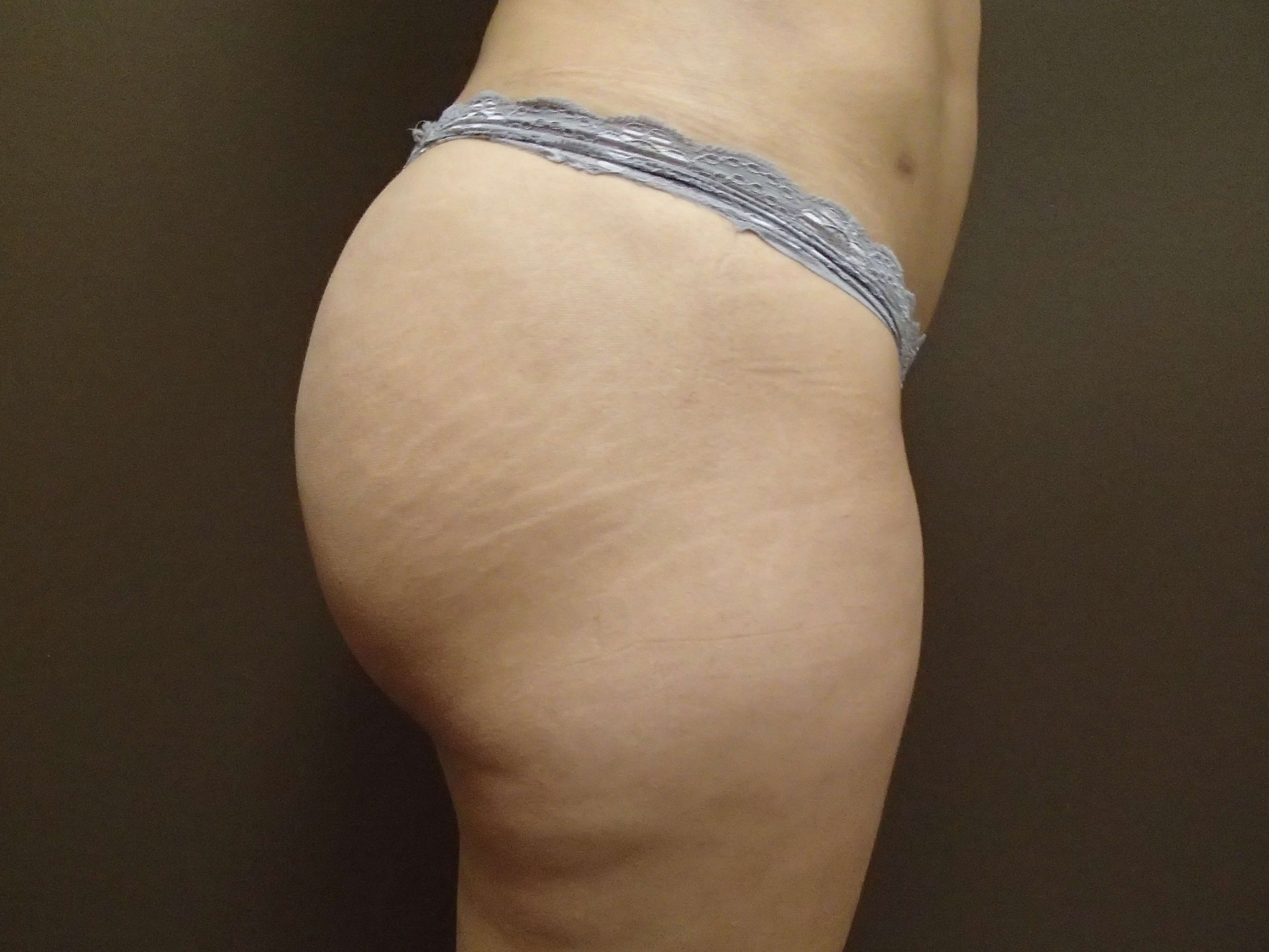Brazilian Butt Lift (BBL) After