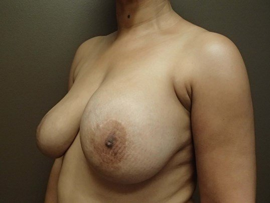 Breast Revision Before