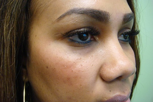 Rhinoplasty with Implant Before