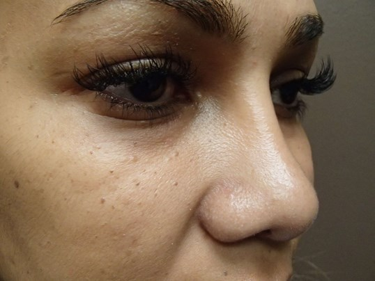 Rhinoplasty with Implant After