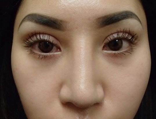 Rhinoplasty and Asian Eyelid After