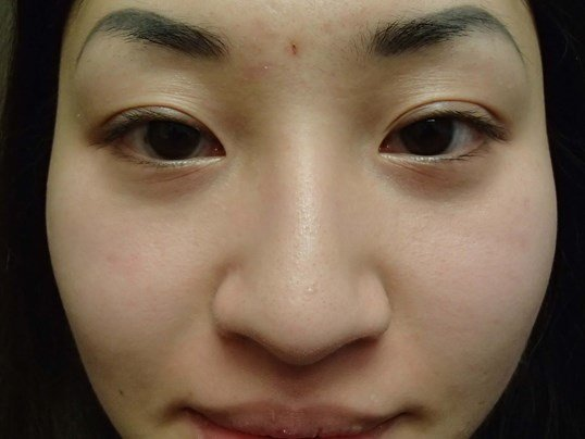 Rhinoplasty and Asian Eyelid Before