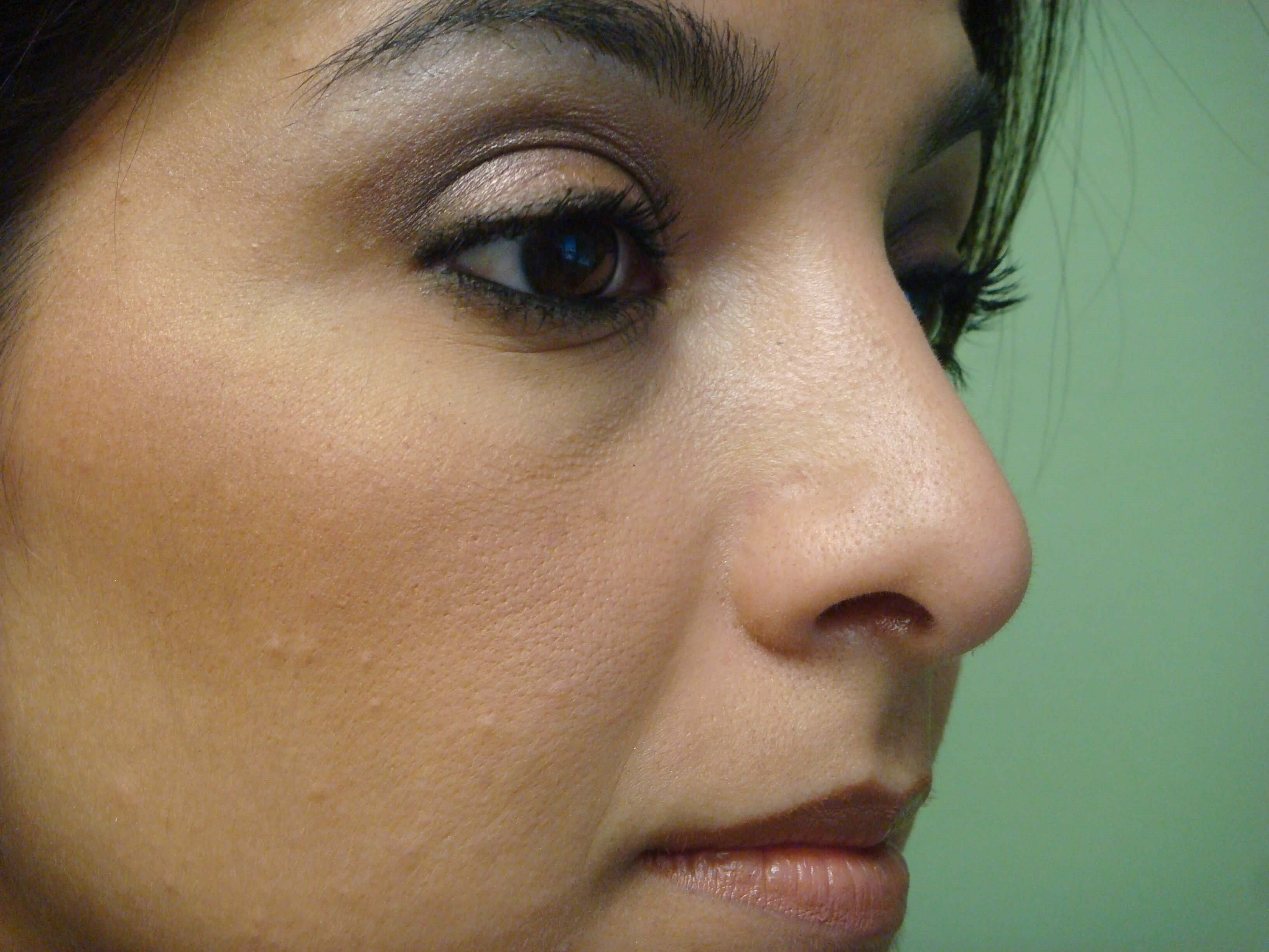 Rhinoplasty (nose job) After