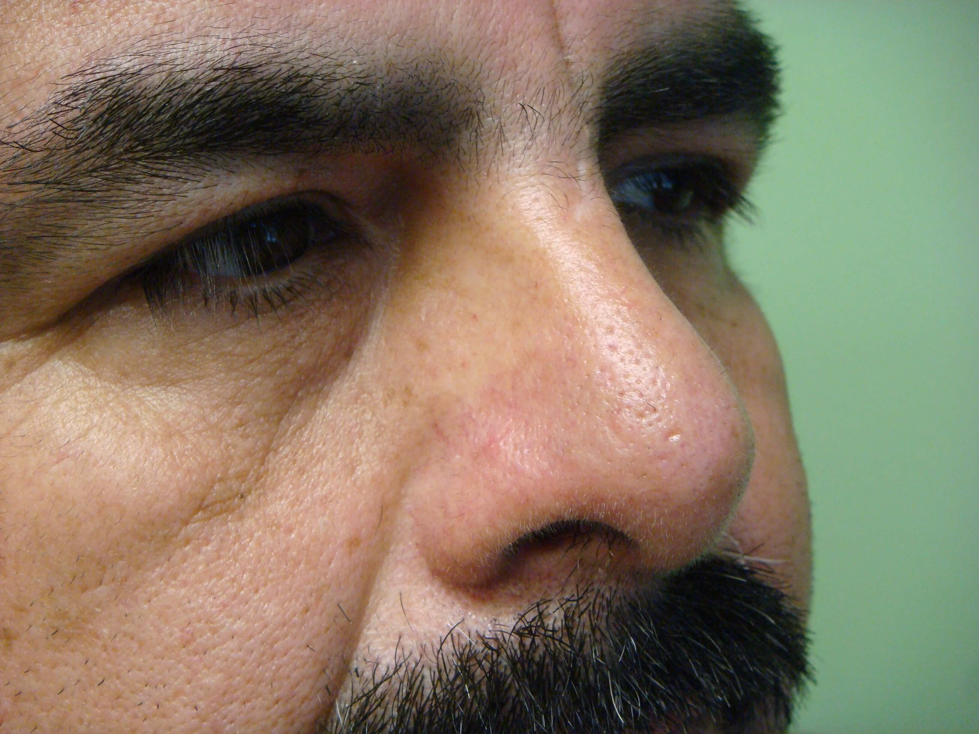 Rhinoplasty/Septoplasty After