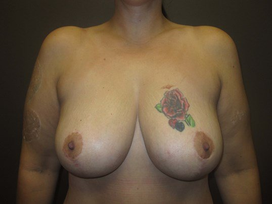 Mastopexy (Breast Lift) After
