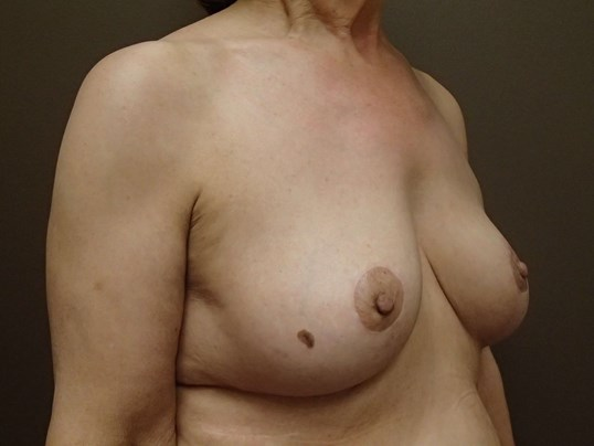 Breast Explant and Mastopexy After