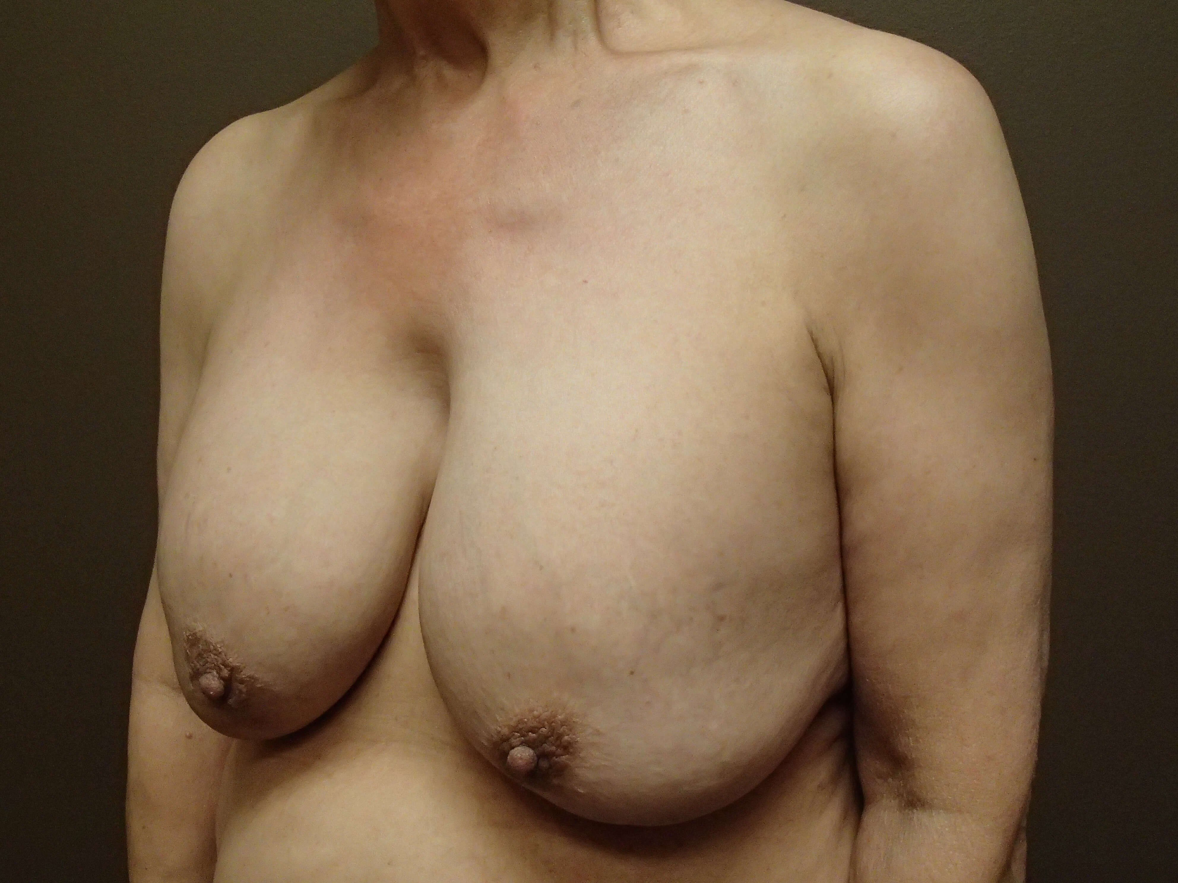 Breast Explant and Mastopexy Before