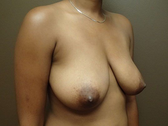Mastopexy (Breast Lift) Before