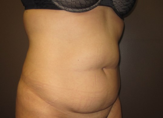 Timeless Tuck Oblique View Before