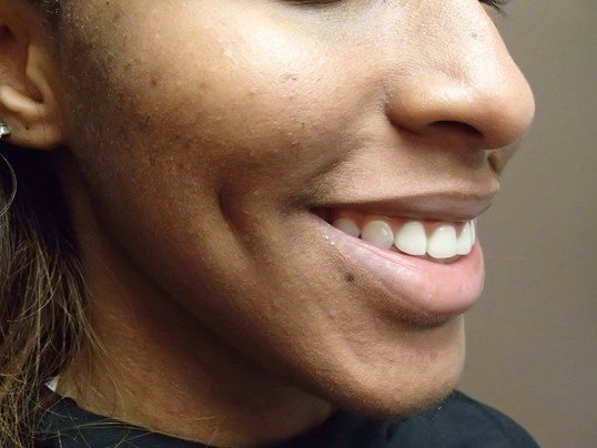 Timeless Dimple (Dimpleplasty) After