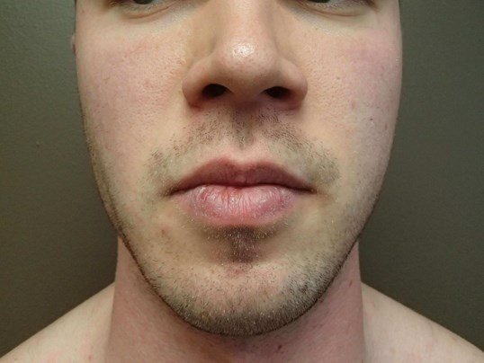Liposuction of the Face After
