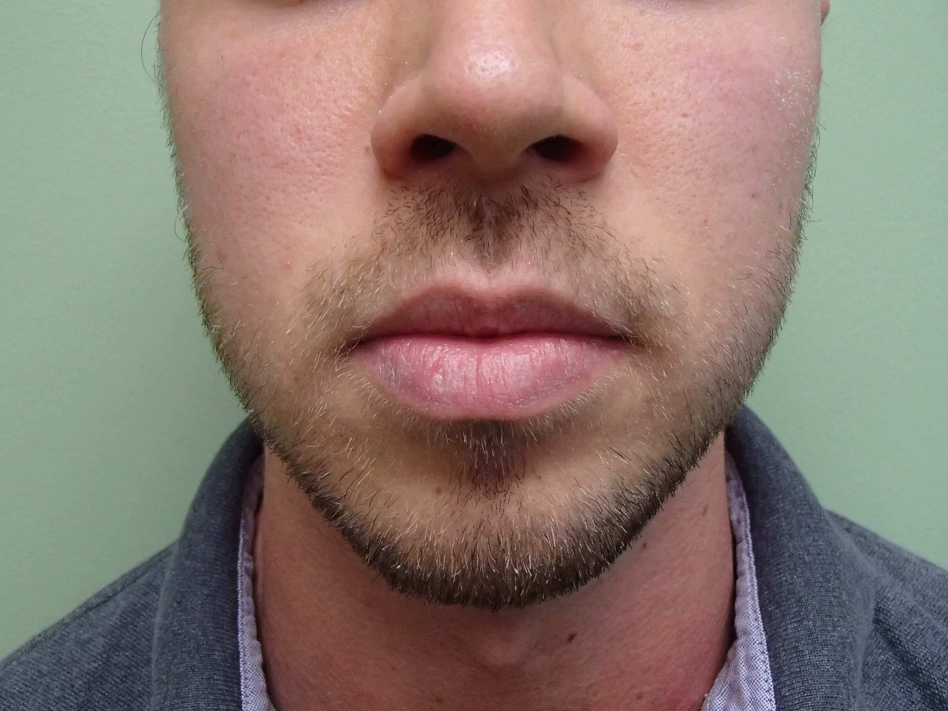 Liposuction of the Face Before