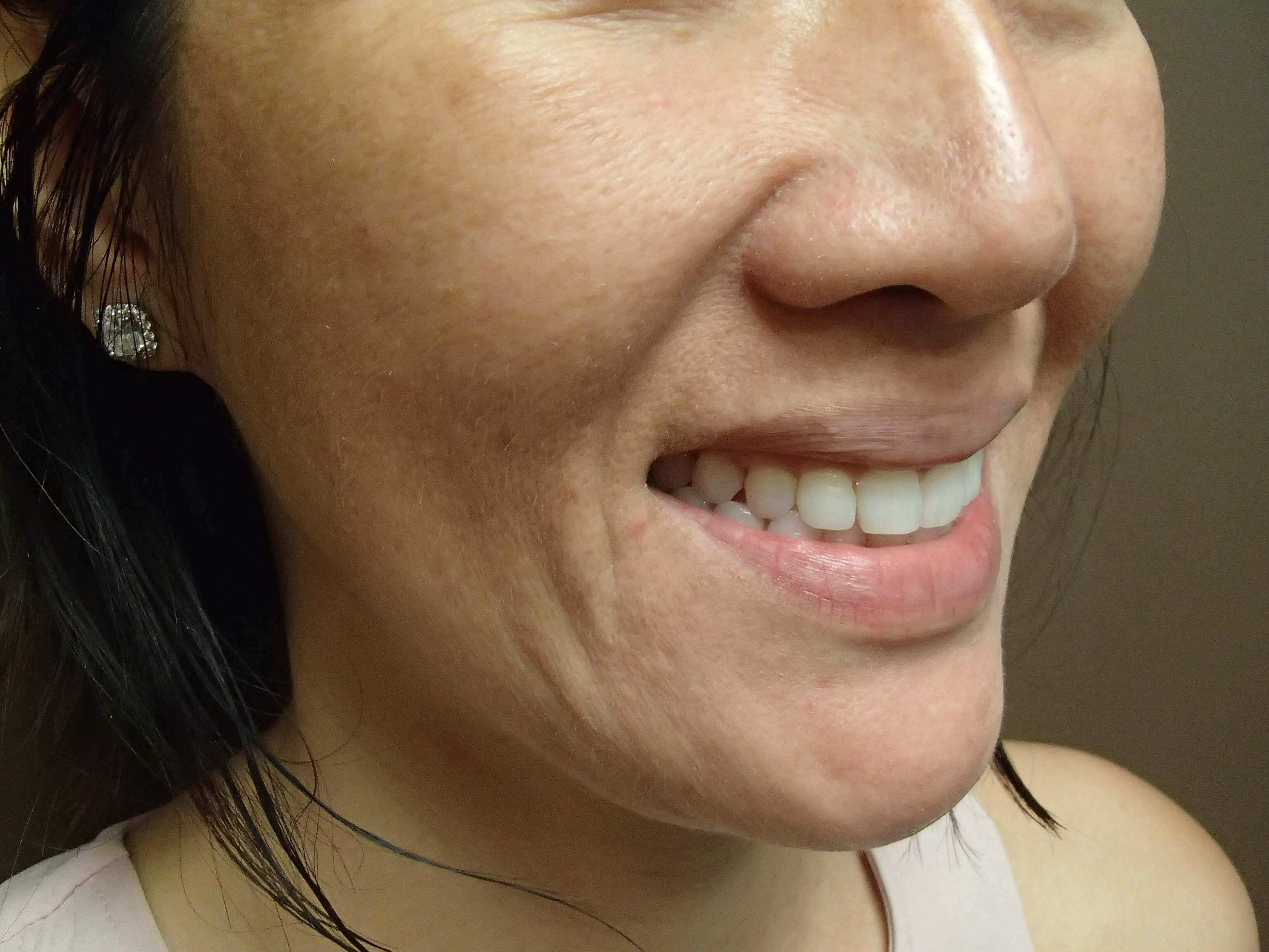 Timeless Dimple (Dimpleplasty) Before
