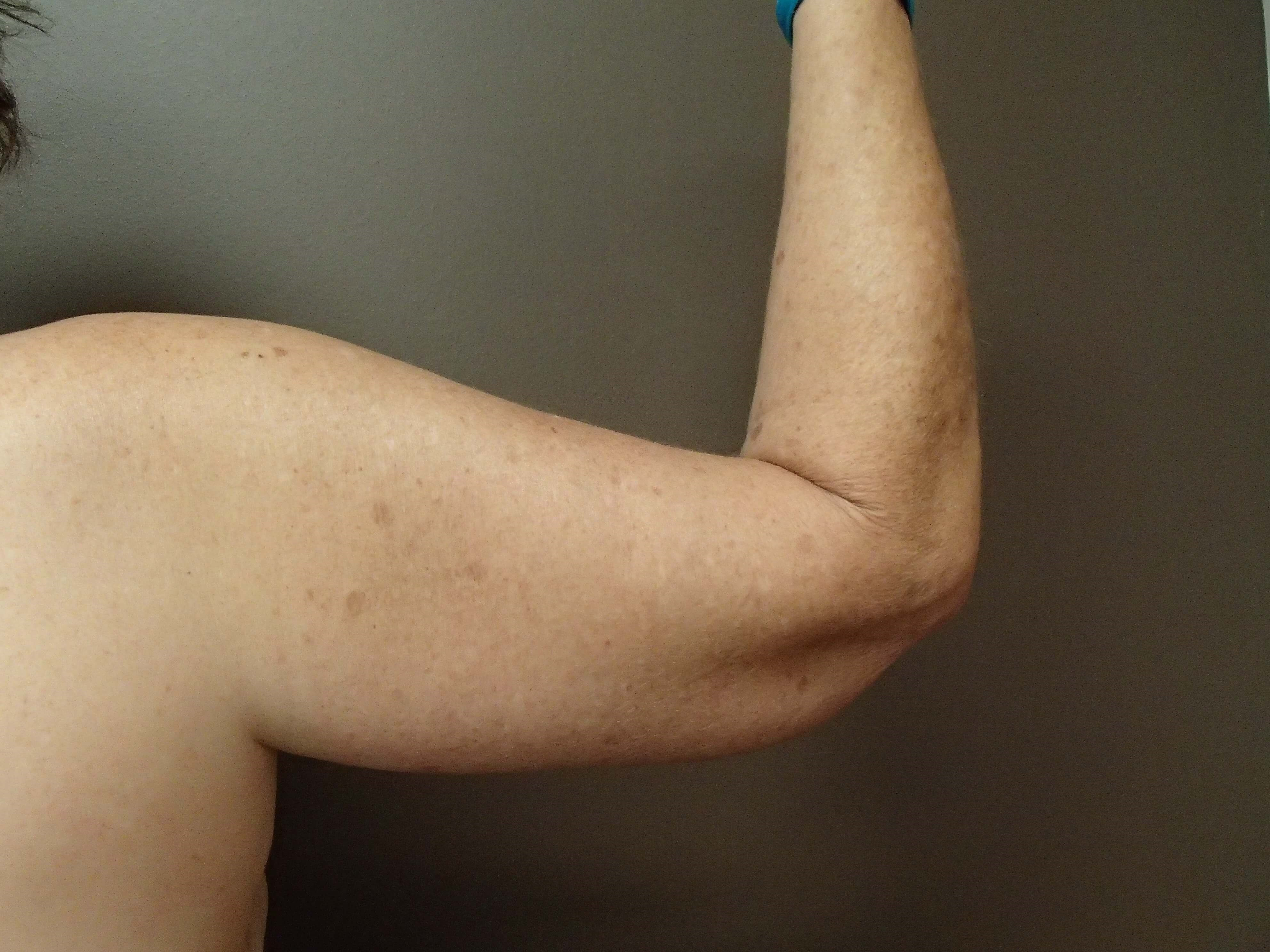 Brachioplasty (Arm Lift) After
