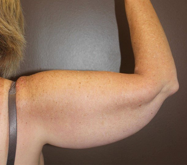 Brachioplasty (Arm Lift) Before