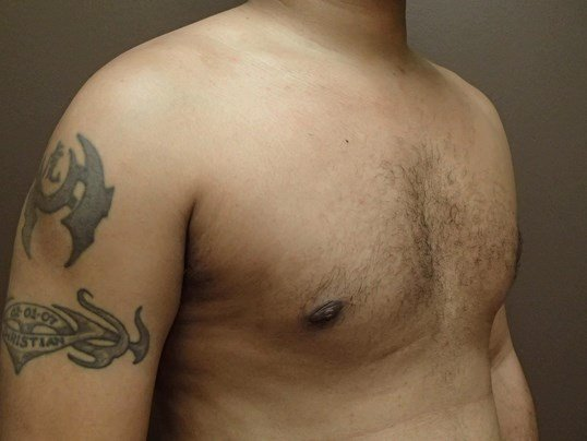 Gynecomastia (male breast redu After