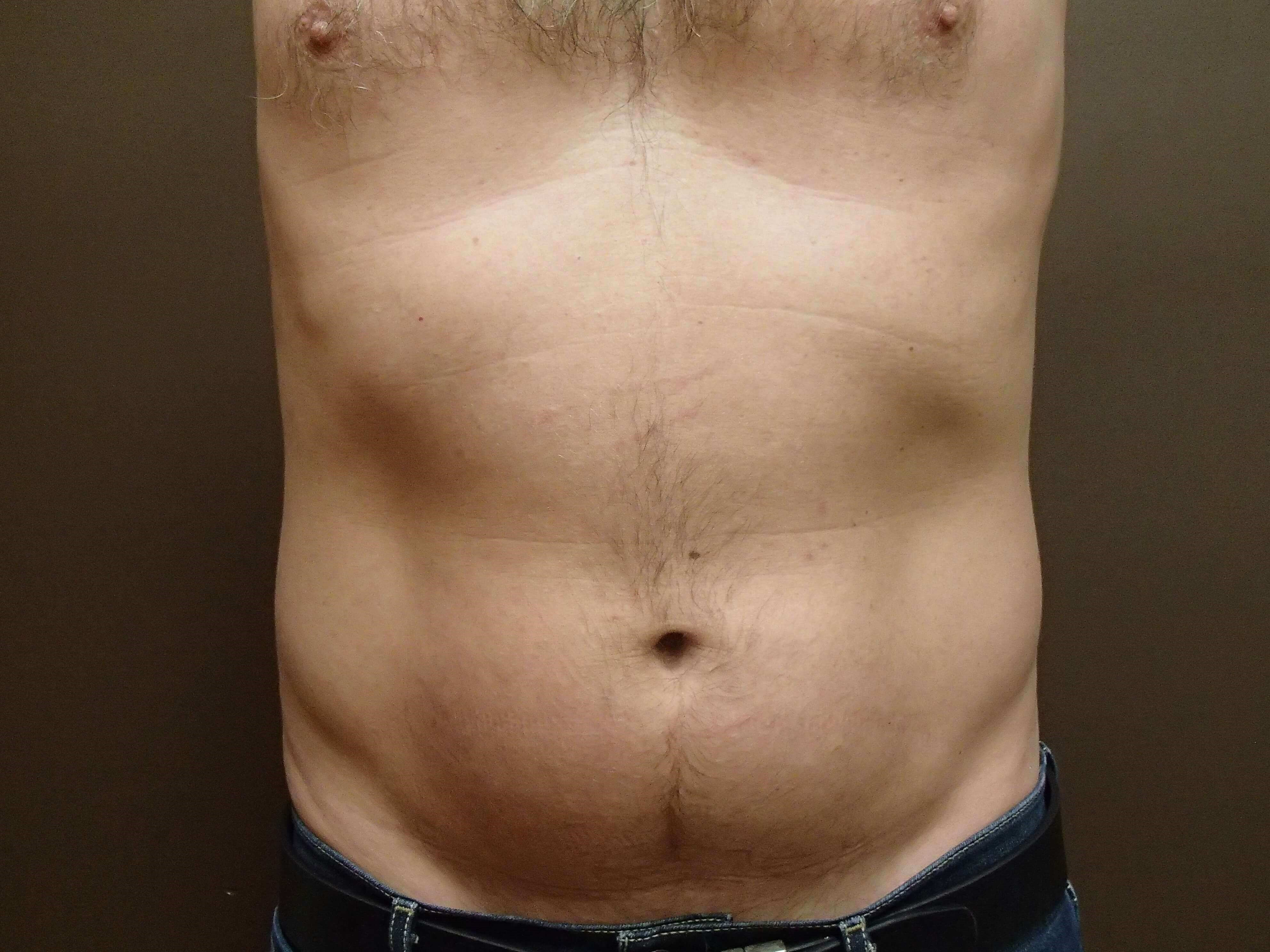 Trusculpt 3D/Emsculpt Abd After