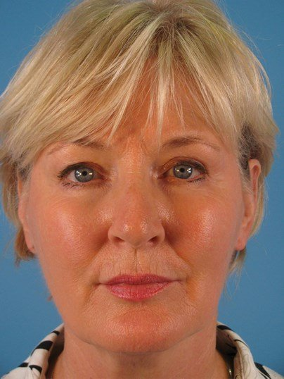 Facelift and Necklift Before
