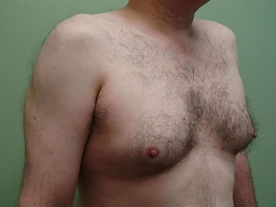 Gynecomastia (male breast redu Before