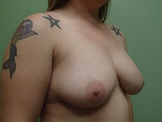 Breast Lift with Implant Before