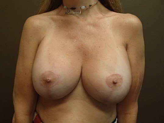 Breast Lift with Implant After