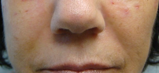 Juvederm to NLF After