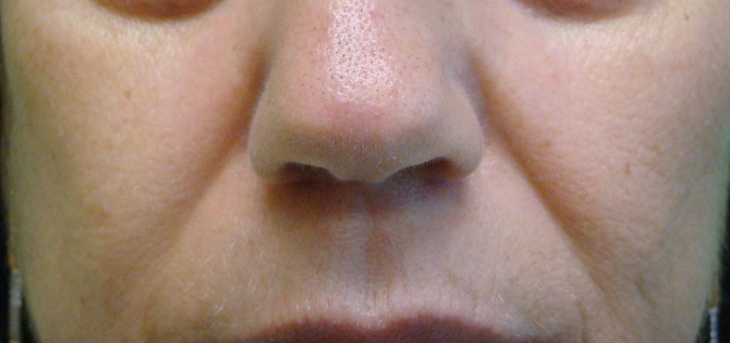 Juvederm to NLF Before
