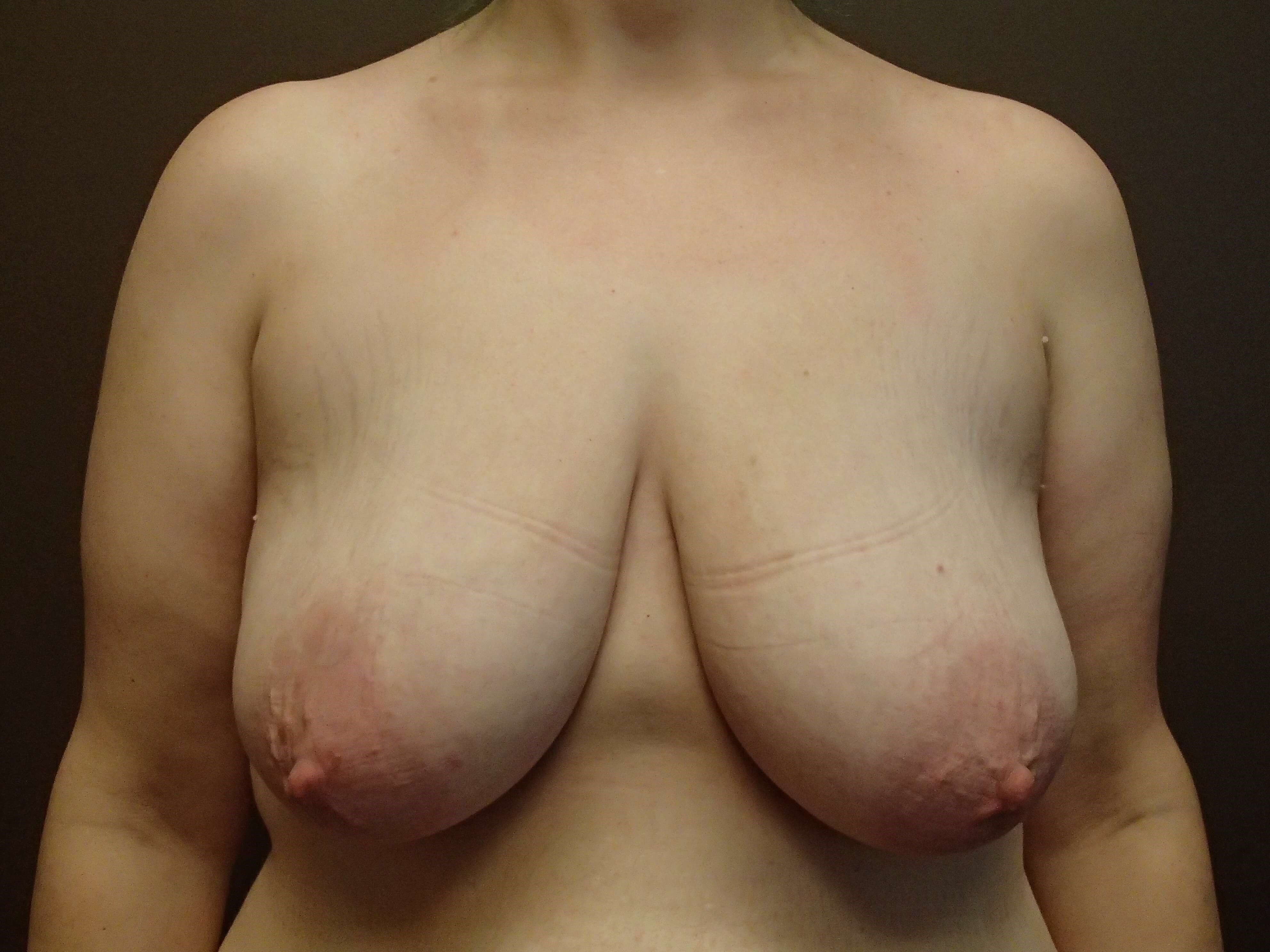 Mastopexy with Implant Before