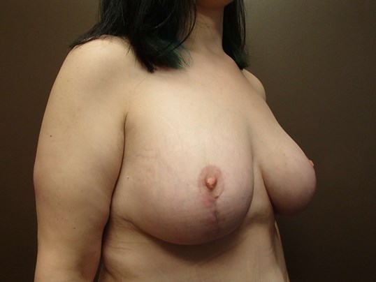 Mastopexy with Implant After
