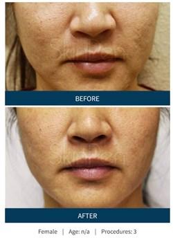 SkinPen1