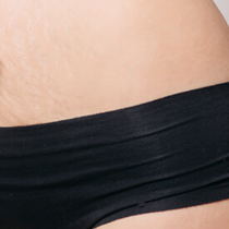 Stretch Mark Treatment*